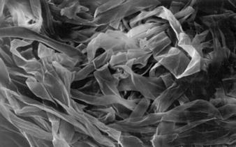 Immature-fiber-microscopic.jpg